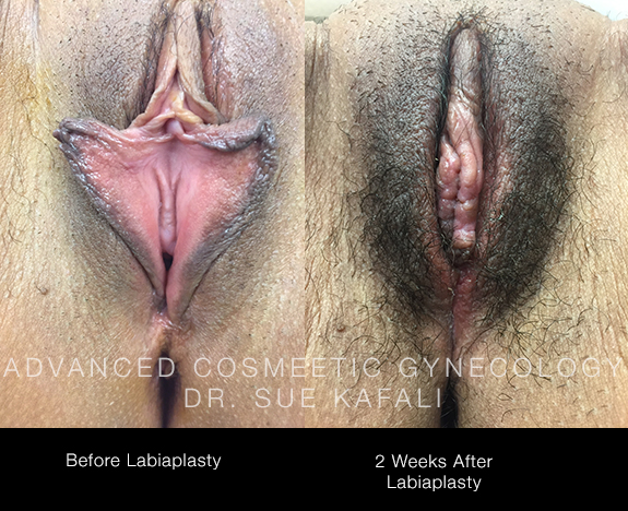 before-and-after-labiaplasty