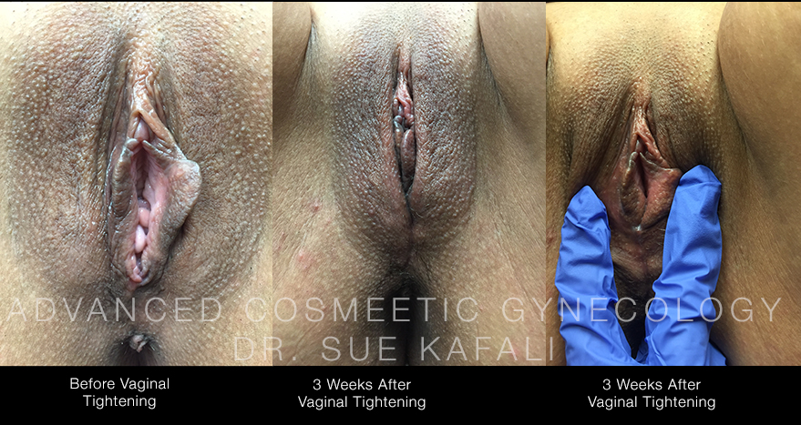 Before and After Vaginal Tightening
